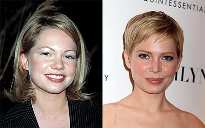 Michelle Williams Nose Job Before And After Photos 1