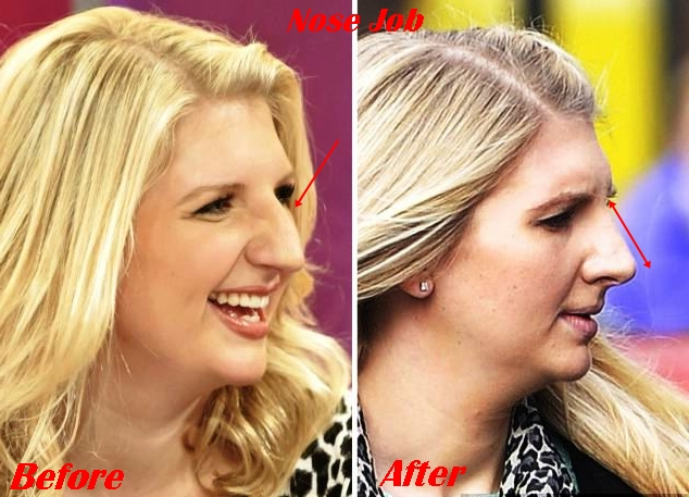 Rebecca Adlington Plastic Surgery Before and After Nose Job Photos