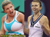 Simona Halep Plastic Surgery Before And After Breast Reduction Photos 1