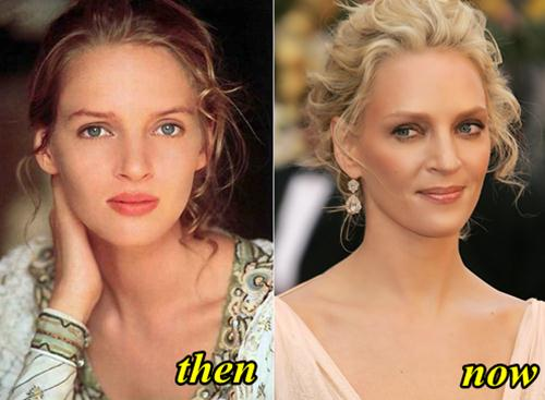 Uma Thurman Plastic Surgery Before and After Photos 2