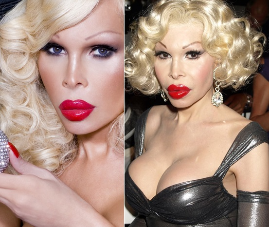 Amanda Lepore Before And After Plastic Surgery Pictures 1