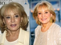 Barbara Walters plastic surgery before and after pictures
