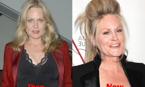 Beverly D'Angelo Plastic Surgery Before And After Face Photos