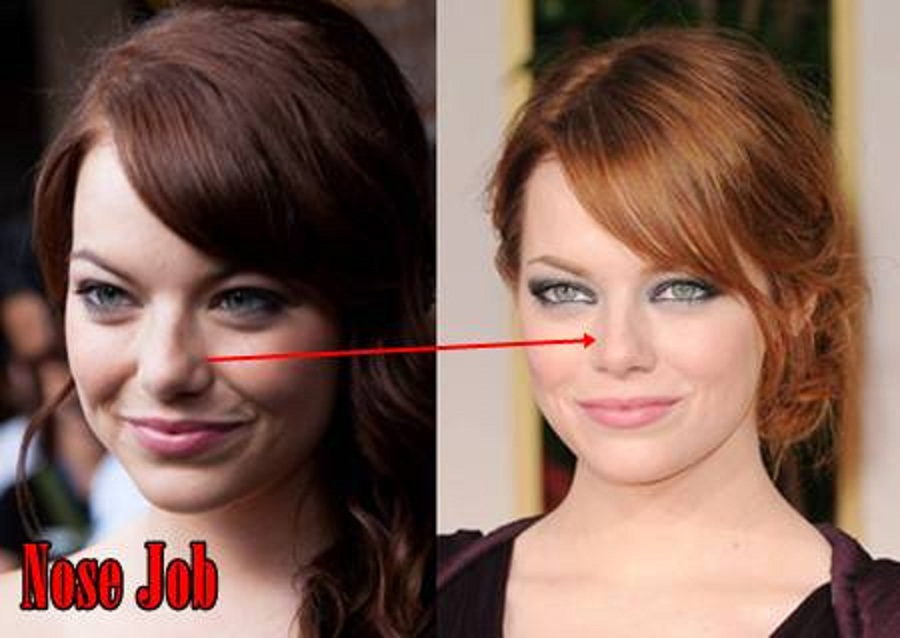 Emma stone nose job before and after pictures 1