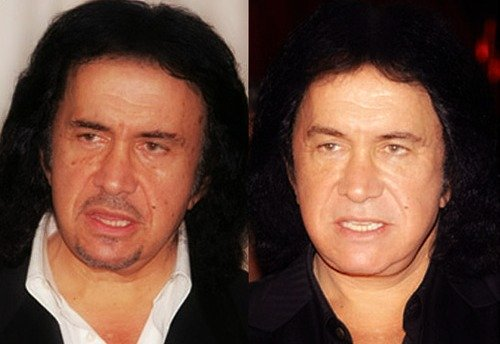 Gene Simmons plastic surgery before and after pictures facelift