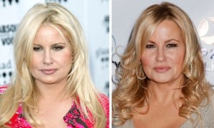 Jennifer Coolidge Plastic Surgery Before And After 2