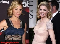 Julie Bowen plastic surgery before and after pictures 2
