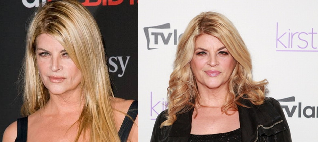 Kirstie Alley plastic surgery before and after photos 1