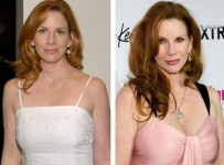 Melissa Gilbert Plastic Surgery Before And After Pictures 1
