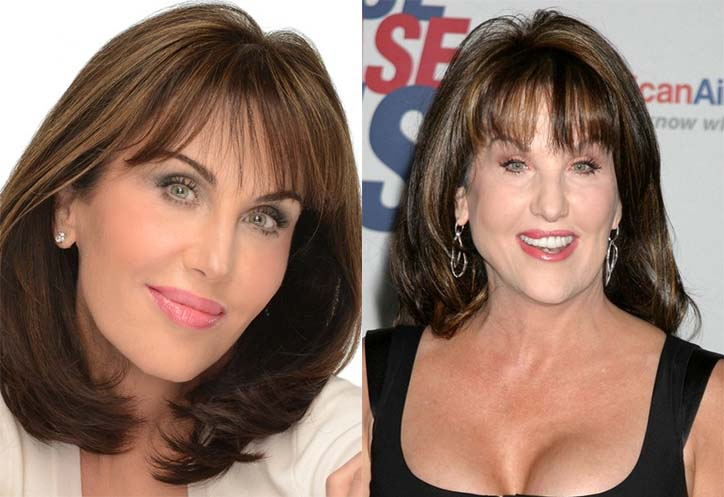 Robin McGraw Facelift Before And After Plastic Surgery