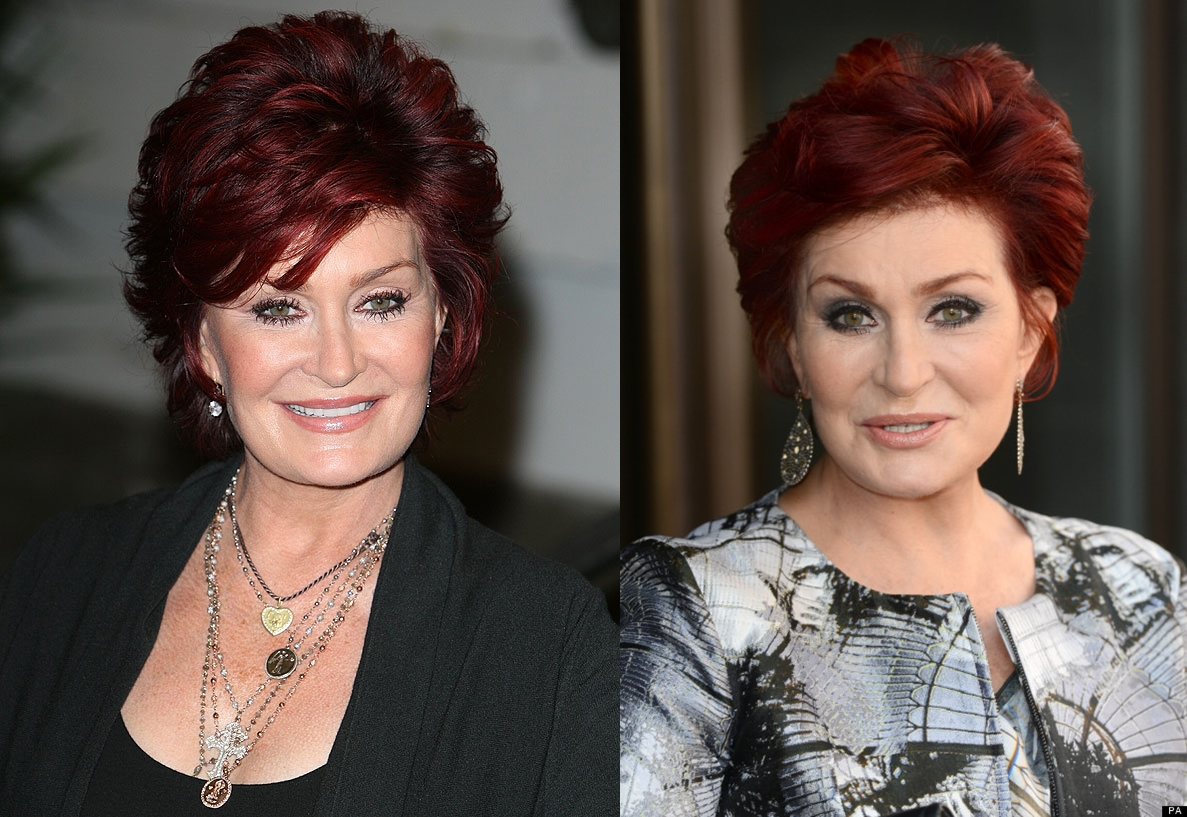 Sharon Osbourne Before Plastic Surgery Before And After Face Photos 1