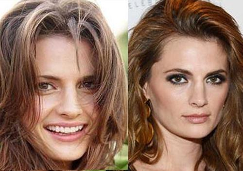 Stana Katic Nose Job Plastic Surgery Before and After Photos 1