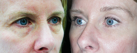 Upper Eyelid Blepharoplasty Before And After Pictures