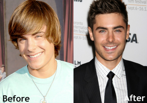 Celebrity Male Plastic Surgery Before And After Photos