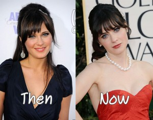Zooey Deschanel Plastic Surgery Before And After Nose Job Photos