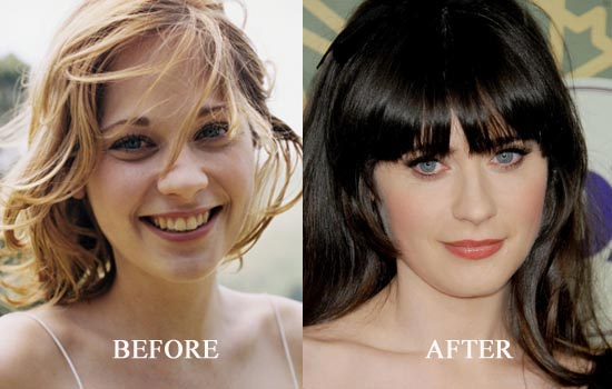 Zooey Deschanel Plastic Surgery Before And After Nose Job
