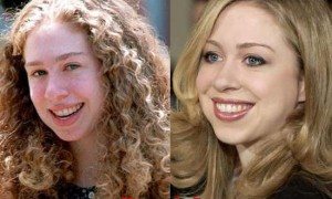 Chelsea Clinton plastic surgery before and after pictures 2