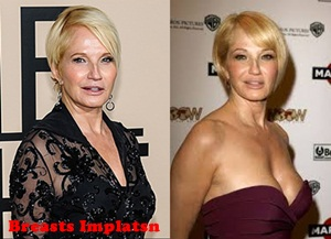 Ellen Barkin Plastic Surgery Before And After Pictures