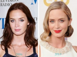 Emily Blunt Plastic Surgery Before And After Pictures 1