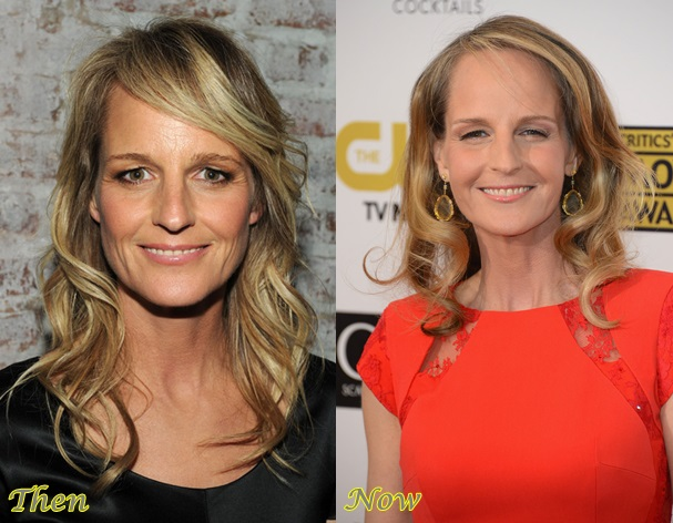 Helen Hunt Plastic Surgery Before And After Photos 2019