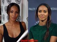 Jada Pinkett Cheek Implants Before And After Facelift 1