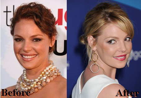 Katherine Heigl Nose Job