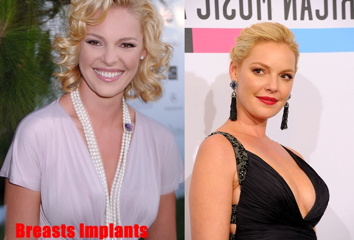 Katherine Heigl Plastic Surgery Before And After Photos 2