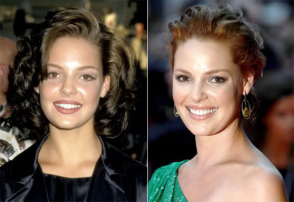 Katherine Heigl Botox and Lip Fillers Before and After Photos