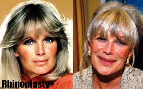 Linda Evans plastic surgery before and after pictures 2