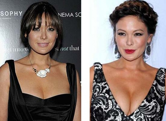Lindsay Price Plastic Surgery Before And After Nose Job Photos 1