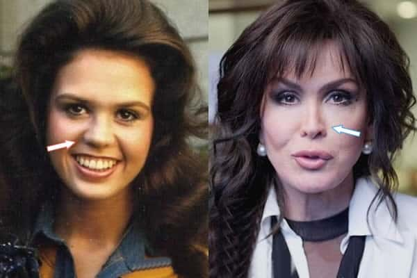 Marie Osmond Nose Job Before and After Photos