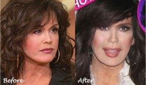 Marie Osmond Plastic Surgery Before And After Photos 3