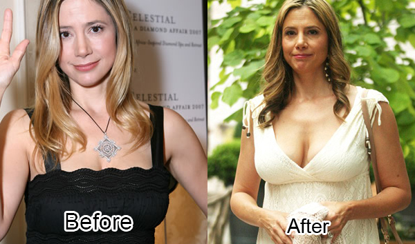 Mira Sorvino Plastic Surgery Before And After Pictures 2