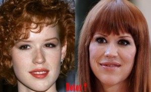 Molly Ringwald plastic surgery before and After Photos