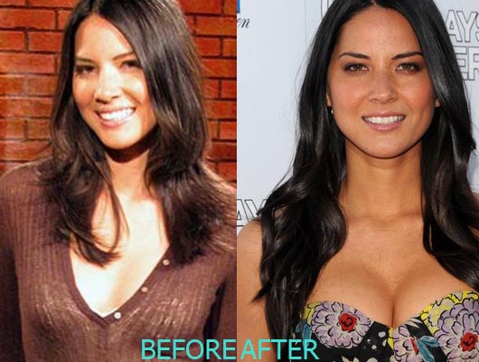 Olivia Munn Plastic Surgery Before And After Breast Implants Photos Boob Job 1