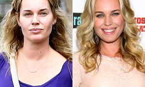 Rebecca Romijn plastic surgery before and after pictures 1