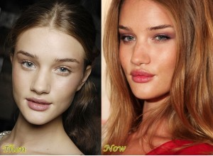 Rosie Huntington-Whiteley Lip Injections Before And After Pictures 1