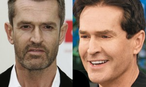 Rupert Everett Plastic Surgery Before And After Pictures