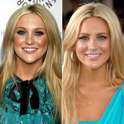 Stephanie Pratt plastic surgery before and after pictures 2