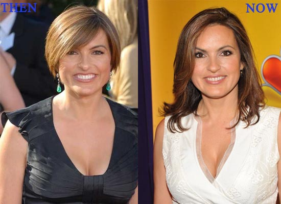 Ariska Hargitay Plastic Surgery Before And After Jaw, Breast Implants Photos 2