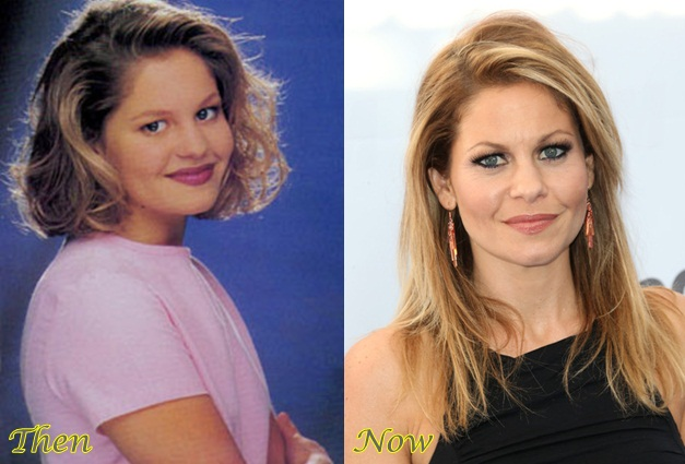 Candacecameron Plastic Surgery Before And Pictures 1