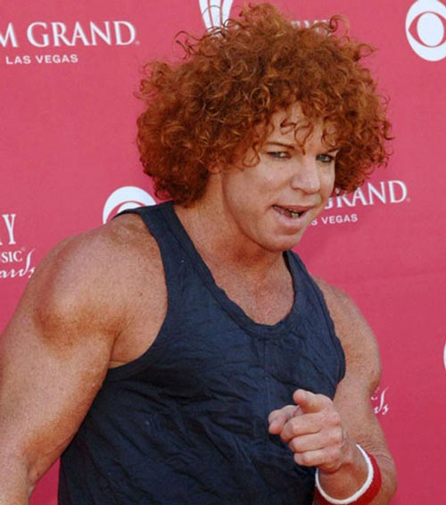 Carrot Top Before And After Plastic Surgery Botox Browlift