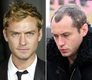 Celebrity hair loss before and pictures bald 2