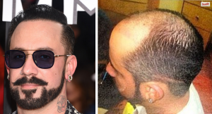 Celebrity hair loss before and pictures bald AJ McLean