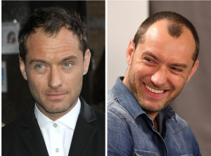 Celebrity hair loss before and pictures bald Jude law