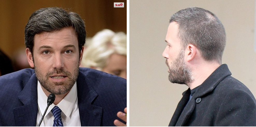 Celebrity hair loss before and pictures bald ben affleck