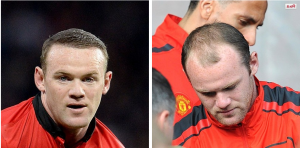 Celebrity hair loss before and pictures bald wayne rooney