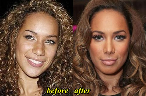 Leona Lewis Nose Job Plastic Surgery Before And After Photos