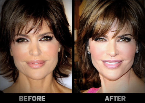 Lisarinna Lips Reduction Plastic Surgery Pictures