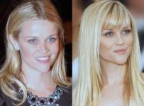 Reese Witherspoon Plastic Surgery Before And After Face Photos